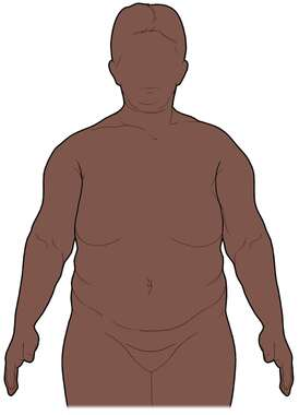Figure of an Obese Woman