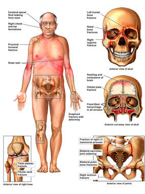 Male Figure with Post-accident Injuries to the Skull, Brain, Knee and Pelvis