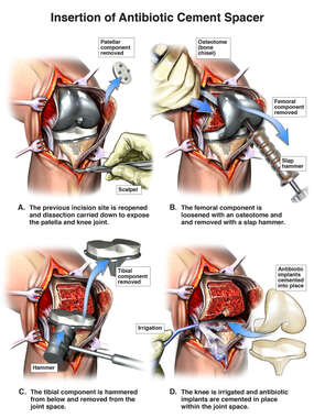 Removal of Total Knee Replacement Hardware