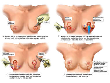 Mastopexy (Breast Reduction) Procedure- with Subsequent Breast Deformity and Scarring.