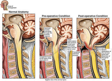 Progression of Cervical Spine Condition
