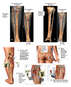 Internal Fixation of Left Leg Fractures