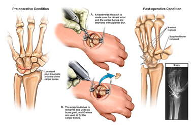 ost-traumatic Arthritis of the Left Wrist with Multiple Carpal Fusions