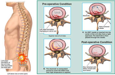 Low Back Pain Relieved by Intradiscal Electrothermal Therapy (IDET)
