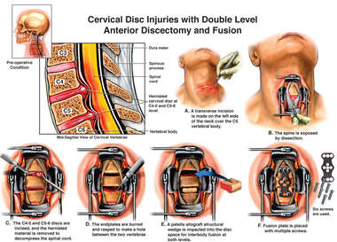 Cervical Disc Injuries with Double Level Discectomy and Fusion