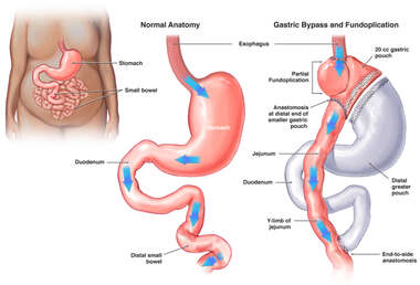 Gastric Bypass and Fundoplication