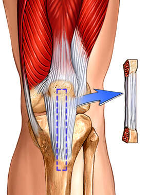 Knee Surgery - Patellar Tendon Graft