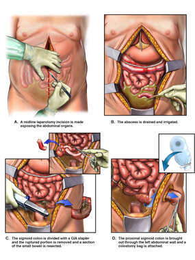 Surgical Repairs of Ruptured Diverticulitis