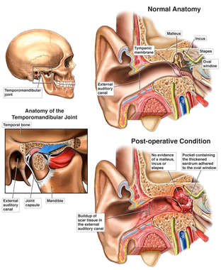Post-operative Ear Damage Following TMJ Surgery