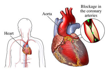Coronary Artery Bypass Graft: anatomy