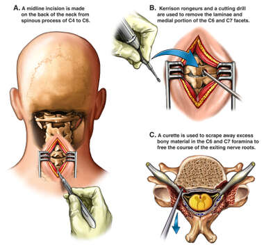 Additional Surgical Repairs to the Neck