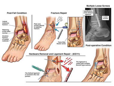 Search: right ankle nerve decompression and hardware removal