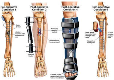 Post-operative Fixation of Lower Leg Injuries