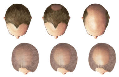 Patterns of Hair Loss: Baldness