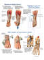 Various Surgical Procedures for Varus Equinus Deformity