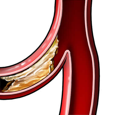 Plaque Formation in an Artery