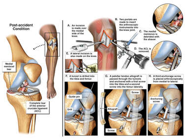 Left Knee Injuries with Surgical Repairs