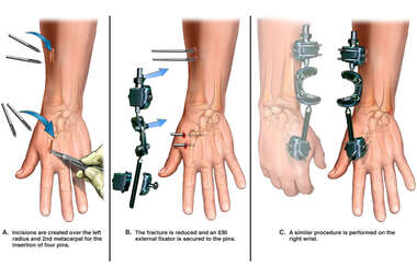 Initial Repairs of Bilateral Wrist Injuries