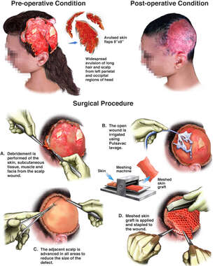 Traumatic Scalp Avulsion with Surgical Repairs