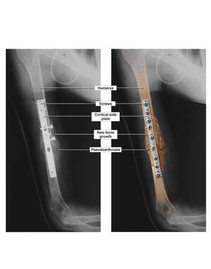 Surgical Fixation of the Right Humerus
