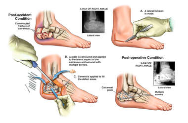 Comminuted Right Calcaneal Fracture with Surgical Fixation