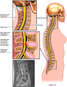 Cervical and Lumbar Disc Herniations