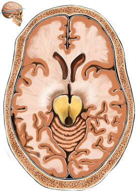 Axial Section Through Brain