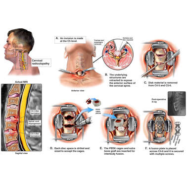 Cervical Spine Injury with C4-5, C5-6 Microdiskectomy and Fusion Surgery