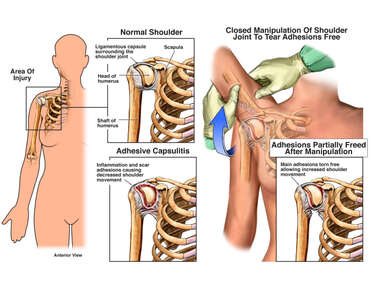 Frozen Shoulder Syndrome (Adhesive Capsulitis) with Surgical Manipulation