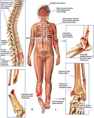 Fractures to the Spine, Chest, Elbow and legs