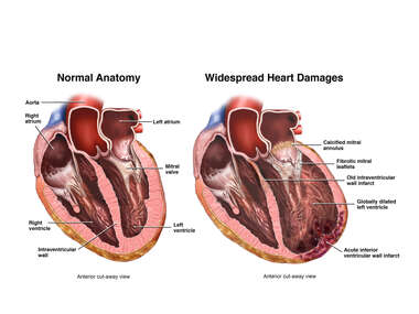 Widespread Heart Damages