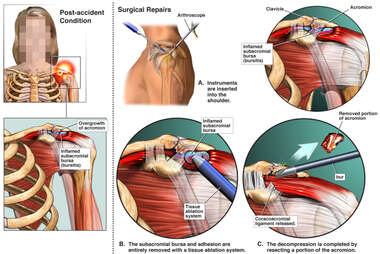 Left Shoulder Injury with Arthroscopic Repairs