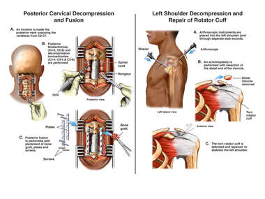 Posterior Cervical Decompression and Left Rotator Cuff Repair