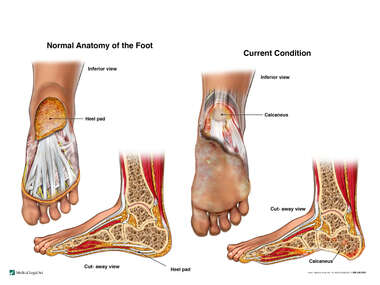 Current Condition of the Left Foot