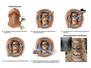 Cervical Spine Surgery with Prosthetic Disc and Cage