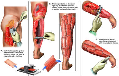 Surgical Debridement and Skin Grafting Procedure