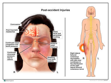 Female Figure with Post-accident Injuries to the Brain, Face and Right Leg