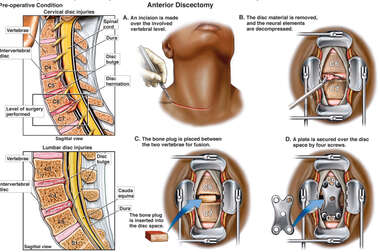 Multilevel Spinal Injuries with Cervical Discectomy and Fusion Procedure
