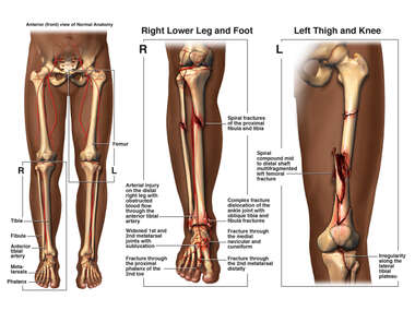 Bilateral Lower Limb Injuries