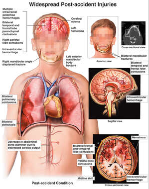 Young Male Figure with Thoracic, Abdominal, Face, Jaw and Brain Injuries