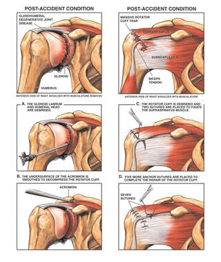 Post-accident Right Shoulder Rotator Cuff Injuries with Surgical Repairs