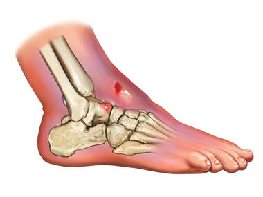 Fracture of Talus and Foot Swelling