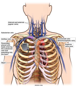 Venous Anatomy of the Upper Thorax