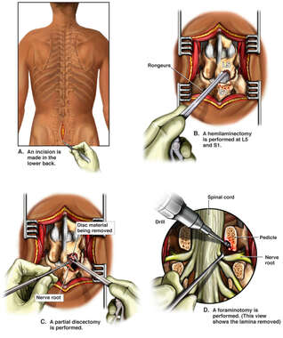 Lumbar Hemilaminectomy, Foraminotomy and Partial Discectomy Procedure