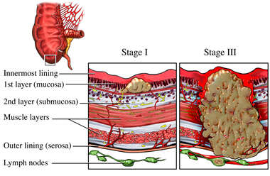 Colon Cancer - Stages I and III
