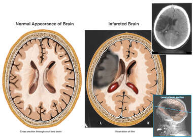 Large Area of Cerebral Infarction