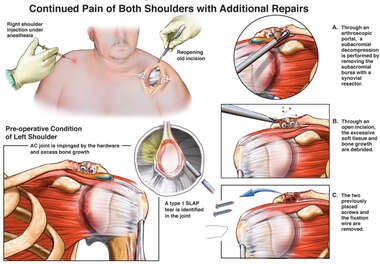 Right Shoulder Injuries with Initial Arthroscopic Repairs