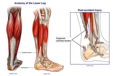 Rupture of the Achilles Tendon