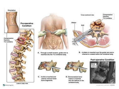 T12 Compression Fracture with Surgical Vertebral Augmentation