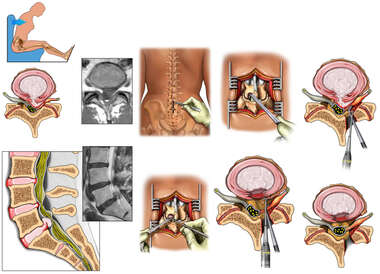 Traumatic Lumbar Spine Injuries with Repairs